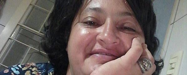 Família faz vaquinha para custear tratamento de mulher contra meningioma