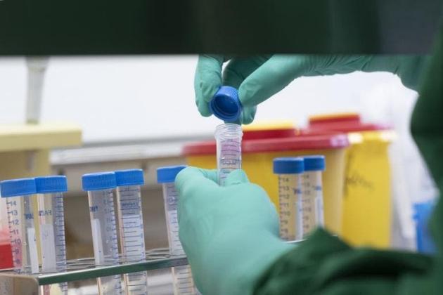 Sobe para seis o número de casos confirmados de Covid-19 em MS