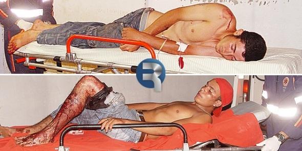 DOURADOS: Amigos são baleados no Jóquei Clube