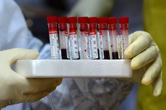 Mato Grosso do Sul tem 47 mortes por coronavírus e 5.237 confirmados