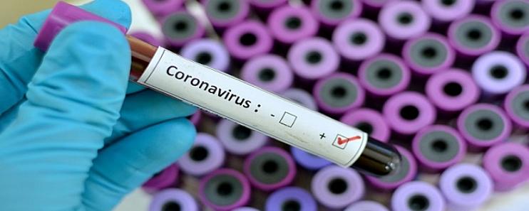 Mato Grosso do Sul tem 91 mortes por coronavírus e 9.062 confirmados