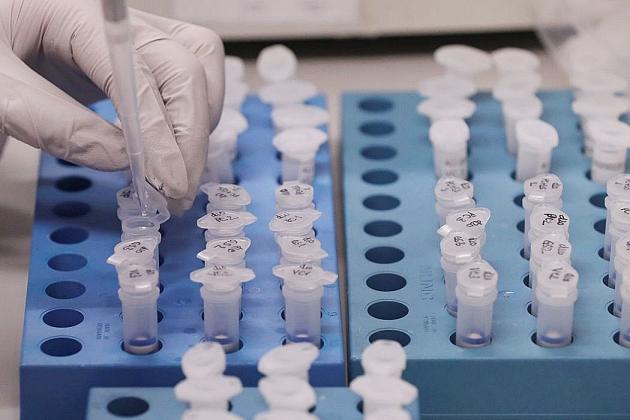 Exame de homem que ficou internado no Hospital da Cassems em Campo Grande confirma positivo para coronavírus